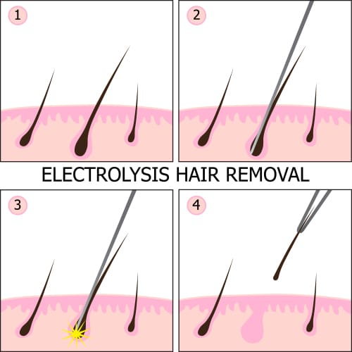 Permanent Hair Removal Treatment NYC